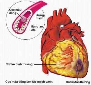Bệnh tim thiếu máu hay còn gọi là bệnh thiếu máu cơ tim đã và đang là nỗi lo của rất nhiều người.