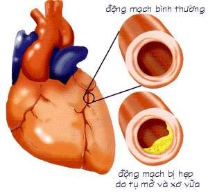 Xơ vữa động mạch và bệnh động mạch vành là những bệnh lí tim mạch gây nguy cơ tử vong cao ở người cao tuổi.