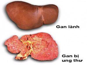 Các bệnh lí về gan nếu không được phát hiện sớm và điều trị kịp thời có thể gây ra những biến chứng nguy hiểm (ảnh minh họa).