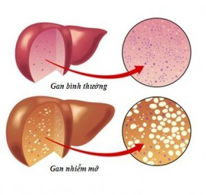 Gan nhiễm mỡ là bệnh lí về gan thường gặp ở những người thừa cân, béo phì và những người thường xuyên sử dụng bia rượu...