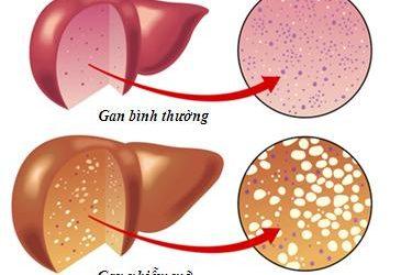 Chữa bệnh gan nhiễm mỡ