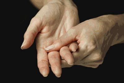 Đau cứng khớp là một trong những biểu hiện thường thấy của bệnh viêm khớp dạng thấp.