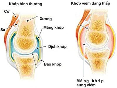 Viêm khớp dạng thấp là bệnh bệnh lí về khớp thường gặp nhiều ở phụ nữ.