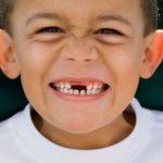 Nên chữa sâu răng ở đâu