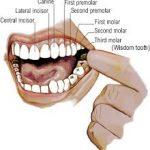 Chữa sâu răng hàm