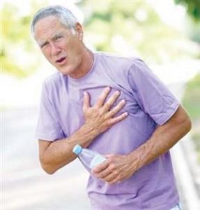 Bệnh tim mạch vành là một trong những nguy cơ gây tử vong hàng đầu thế giới(ảnh minh họa).