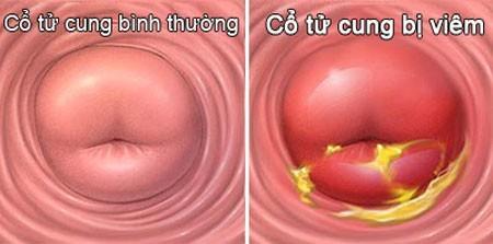 Viêm cổ tử cung là bệnh lí phụ khoa thường gặp và khá phổ biến ở phụ nữ hiện đại.
