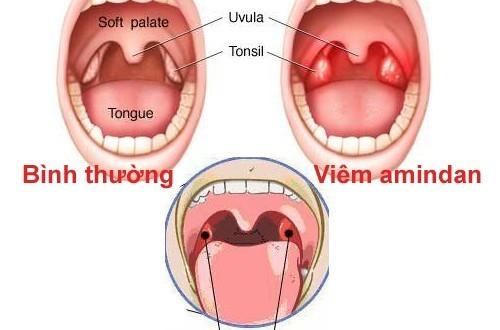 Viêm amidan là một trong những bệnh lí tai mũi họng khá phổ biến.