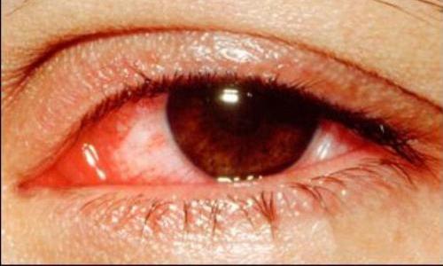 Bệnh nhân bị đau mắt đỏ
