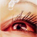 Bệnh đau mắt