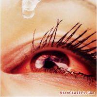 Cách phòng và chữa bệnh đau mắt đỏ