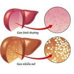 Phương pháp chữa bệnh gan nhiễm mỡ