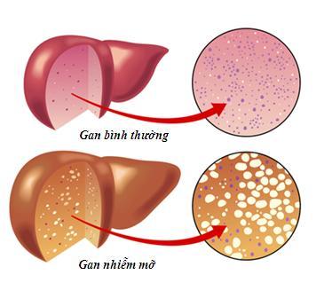 gan nhiễm mỡ là tình trạng tích tụ chất béo, mỡ dư thừa trong gan...