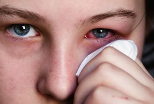Đau mắt đỏ gây nhiều khó khăn, bất tiện cho người bệnh.