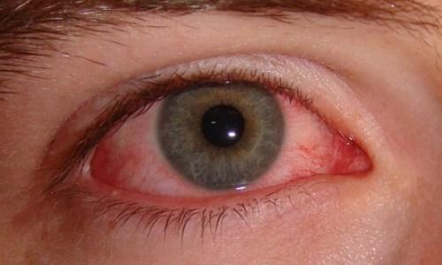 tri đau mắt đỏ