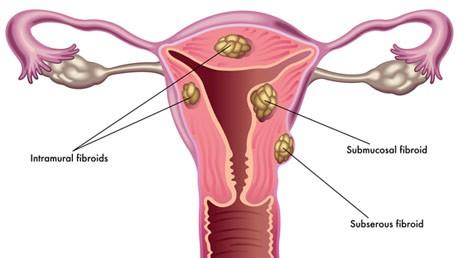 Khám bệnh u xơ tử cung 2