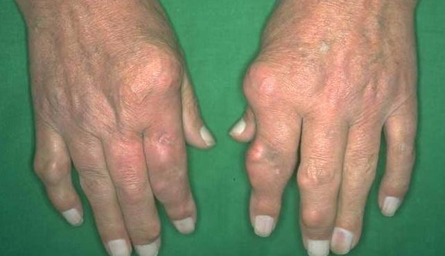 Khám bệnh Gout ở đâu tốt