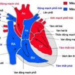 Cách chữa bệnh tim đập chậm