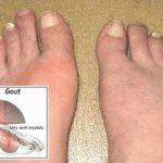 Khám bệnh Gout ở đâu