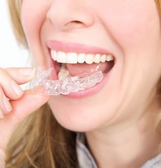 Niềng răng invisalign bao nhiêu tiền?2