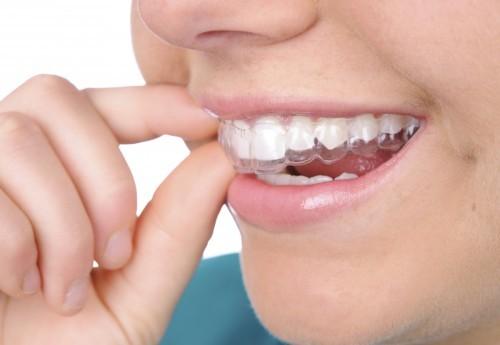 Niềng răng Invisalign có tốt không?2