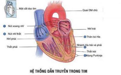 Bệnh tim thông liên nhĩ