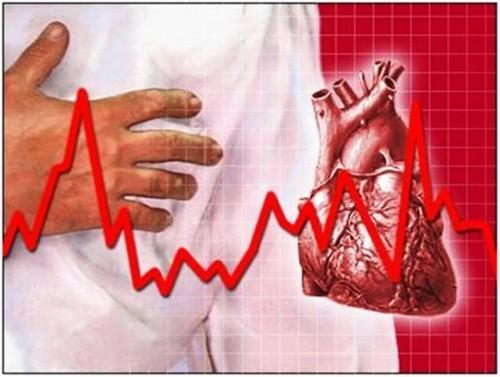 Chữa bệnh loạn nhịp tim