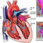Bệnh tim thông liên thất