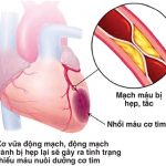 Cách nhận biết bệnh thiếu máu cơ tim