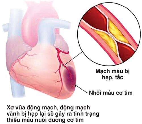 Cách chữa bệnh tim lớn
