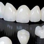 Các kỹ thuật làm răng giả