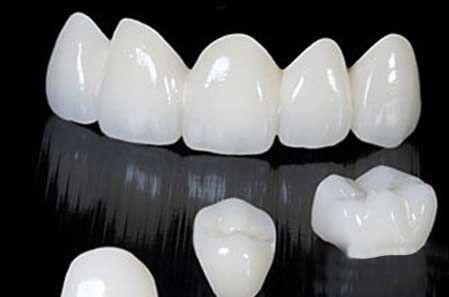 Để vừa đảm bảo chức năng nhai, vừa đảm bảo sức khỏe chung cho cả hàm răng và đảm bảo tính thẩm mỹ, làm răng giả nhựa là biện pháp giúp bù đắp khi bị mất răng.