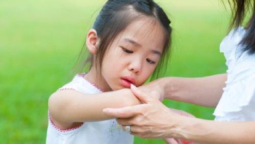 Bệnh viêm khớp trẻ em