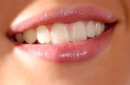 Một hàm răng đều đẹp, trắng bóng là mơ ước của bất cứ ai