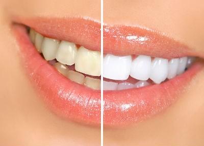 Tẩy trắng răng hết bao nhiêu tiền?