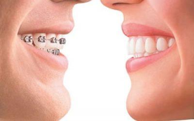 Răng bị hô vẩu, niềng răng hay bọc sứ?
