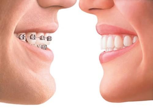 Niềng răng móm là giải pháp nha khoa giúp khắc phục nhược điểm của hàm răng móm
