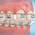 Niềng răng thưa mất bao lâu?