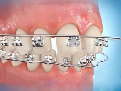 Niềng răng hiệu quả như thế nào?