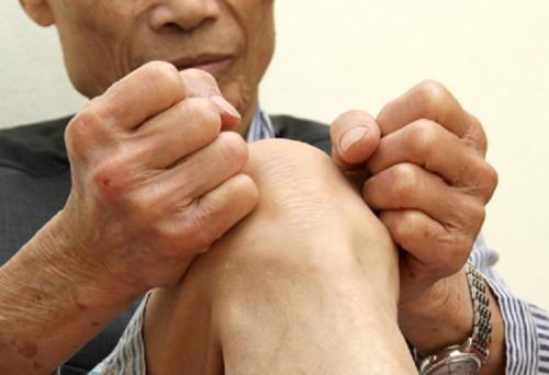 Bệnh viêm khớp gối cấp tính2