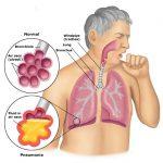 Bệnh phổi tắc nghẽn mạn tính là gì