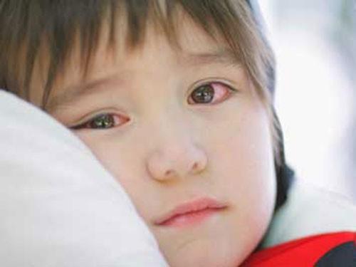 Đau mắt đỏ là bệnh thường gặp trong các bệnh mắt ở trẻ em