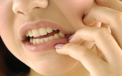 Đau răng dùng thuốc gì?