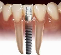 Bệnh viên Thu Cúc đang ứng dụng nhiều phương pháp làm răng giả hiện đại, kỹ thuật cao