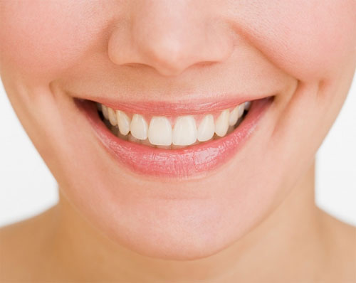 Niềng răng giúp mang đến hàm răng đều đẹp, nụ cười rạng rỡ