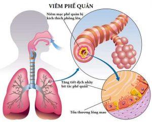 Hình ảnh giải phẫu bệnh viêm phế quản