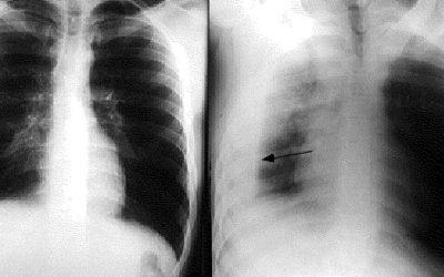 Vì sao bị tràn dịch màng phổi