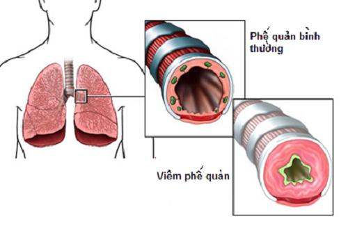 Hình ảnh giải phẫu uống phế quản bình thường và ống phế quản viêm