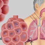 Viêm phổi có nguy hiểm không