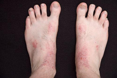 Bệnh nấm da chớ nên coi thường2